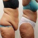 3 nap alatt eltűnik a zsír a csípődről és a hasadról! Íme a legolcsóbb módszer..